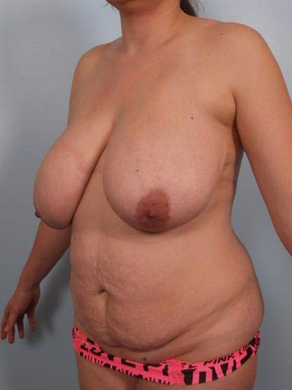 Mommy Makeover Gallery - Patient 1310680 - Image 3