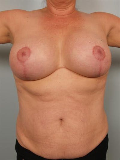 Complex Breast Revision Gallery - Patient 1310679 - Image 6