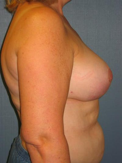 Breast Reduction Gallery - Patient 1310678 - Image 6