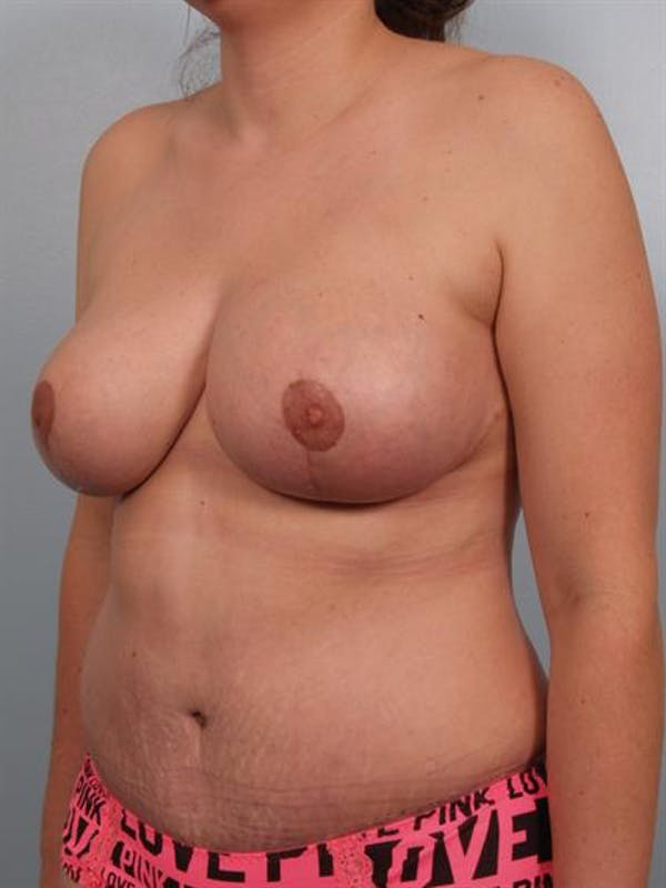 Mommy Makeover Gallery - Patient 1310680 - Image 4