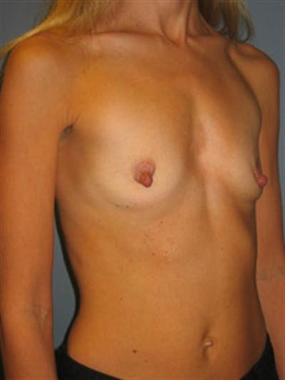 Breast Augmentation Gallery - Patient 1310688 - Image 1