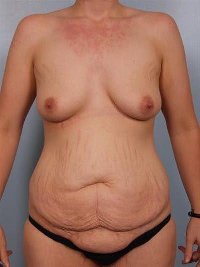 Breast Lift Gallery - Patient 1310683 - Image 1