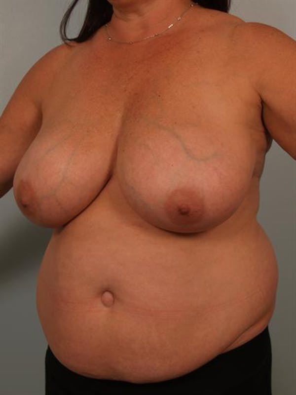 Breast Reduction Gallery - Patient 1310684 - Image 3