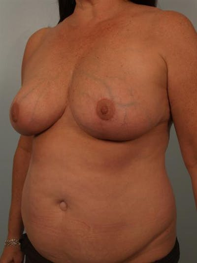 Breast Reduction Gallery - Patient 1310684 - Image 4