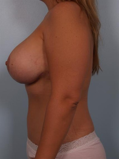 Complex Breast Revision Gallery - Patient 1310685 - Image 4