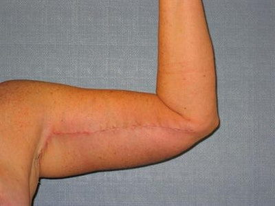 Brachioplasty (Arm Lift) Gallery - Patient 1310682 - Image 6