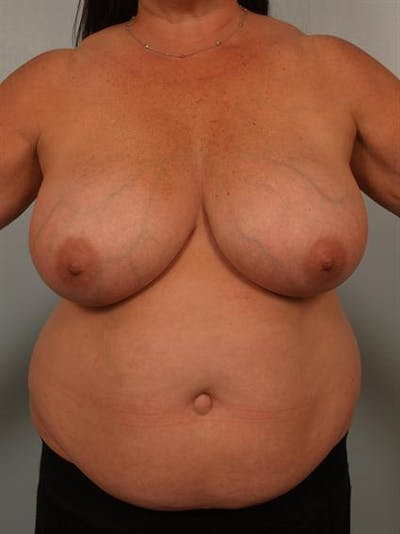 Breast Reduction Gallery - Patient 1310684 - Image 1