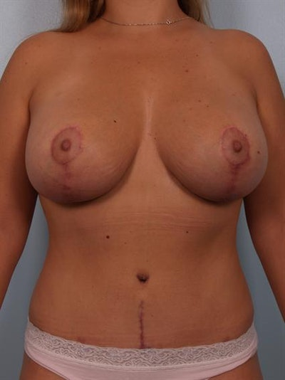 Complex Breast Revision Gallery - Patient 1310685 - Image 2