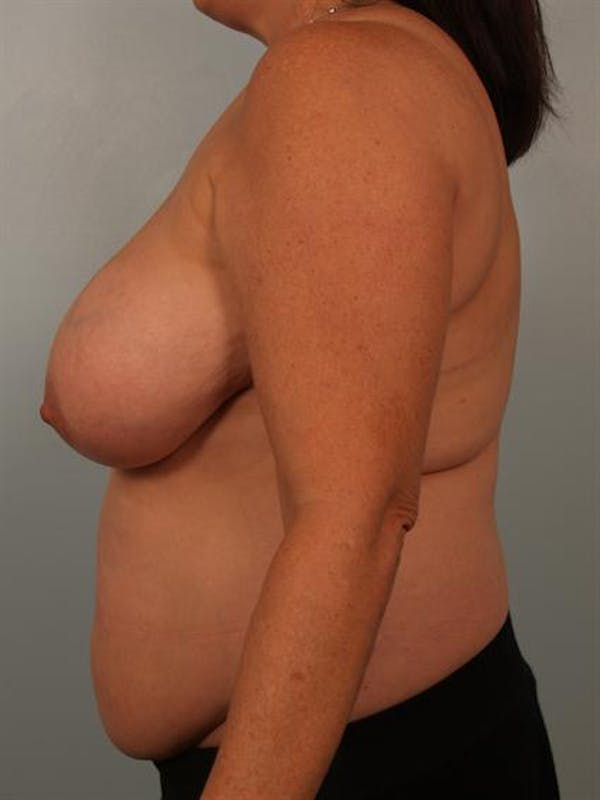 Breast Reduction Gallery - Patient 1310684 - Image 5