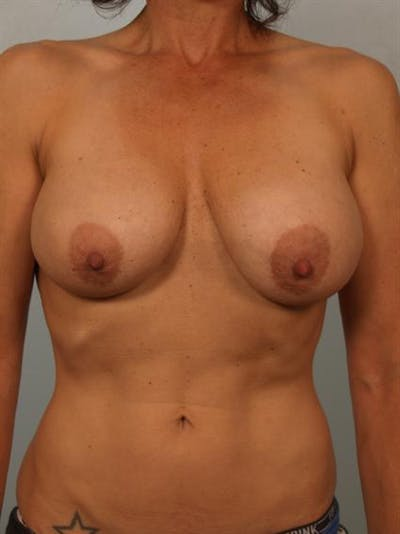 Breast Lift Gallery - Patient 1310689 - Image 1