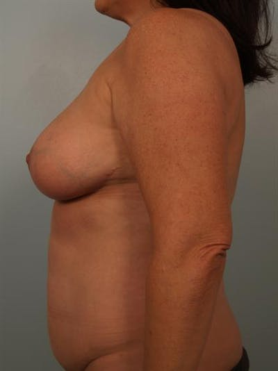 Breast Reduction Gallery - Patient 1310684 - Image 6