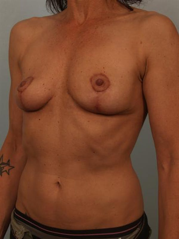 Breast Lift Gallery - Patient 1310689 - Image 4