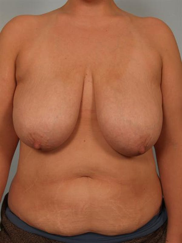 Breast Reduction Gallery - Patient 1310691 - Image 1