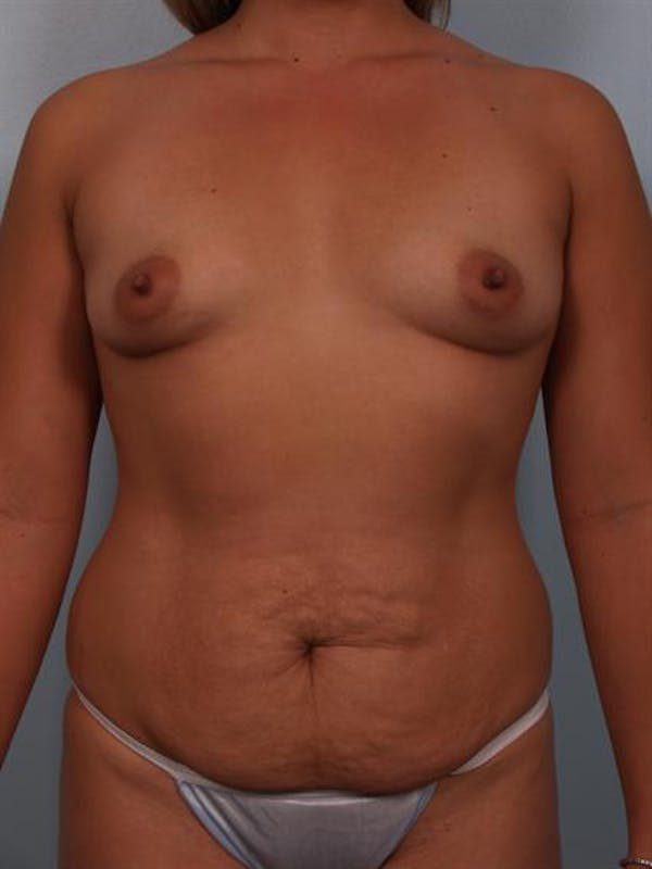 Mommy Makeover Gallery - Patient 1310693 - Image 1