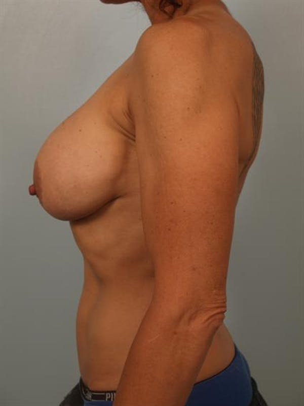 Breast Lift Gallery - Patient 1310689 - Image 5