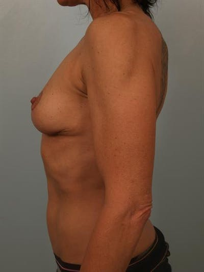 Breast Lift Gallery - Patient 1310689 - Image 6