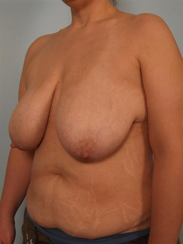 Breast Reduction Gallery - Patient 1310691 - Image 3