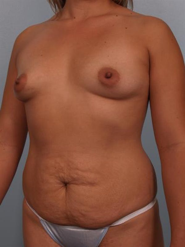 Mommy Makeover Gallery - Patient 1310693 - Image 3