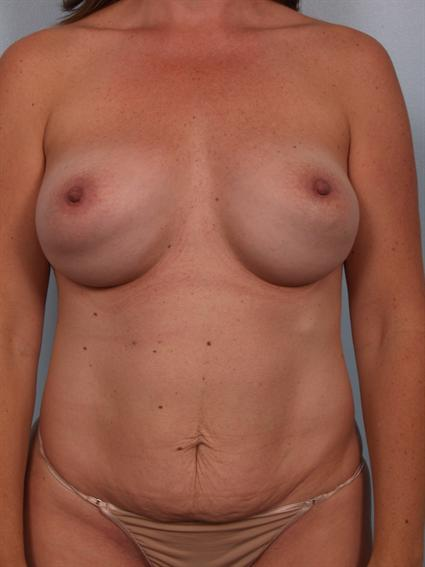 Image3 - Before and after image of Power Assisted Liposuction by Dr. Cohen.