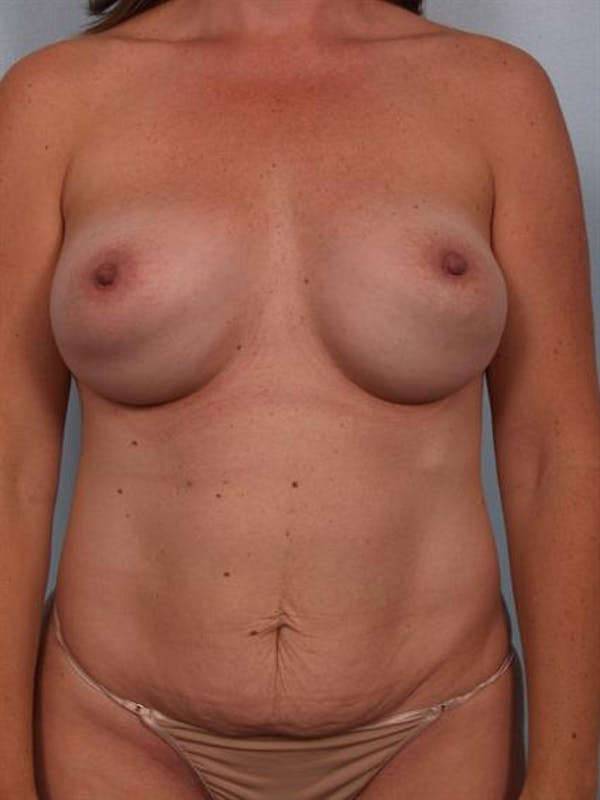 Power Assisted Liposuction Gallery - Patient 1310692 - Image 1