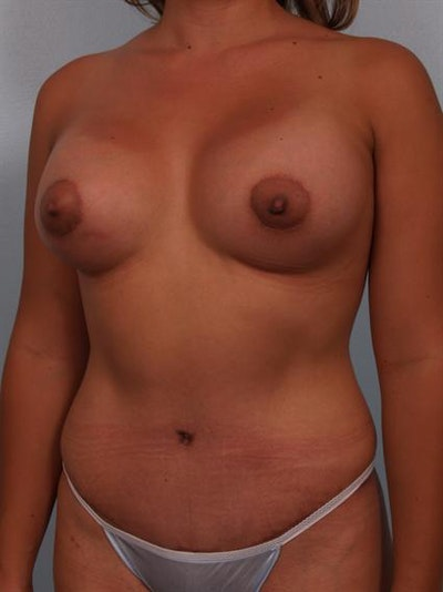 Mommy Makeover Gallery - Patient 1310693 - Image 4