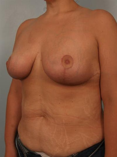 Breast Reduction Gallery - Patient 1310691 - Image 4