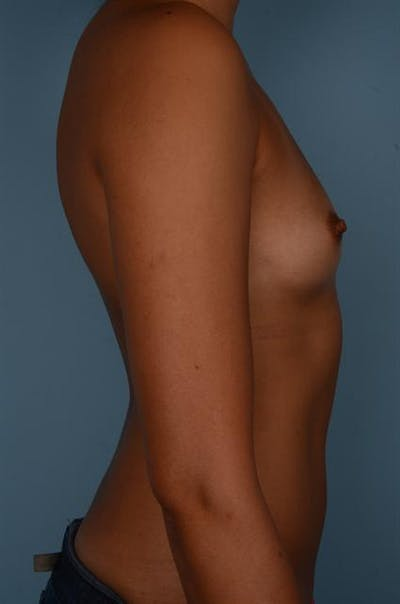 Breast Augmentation Gallery - Patient 1310696 - Image 1