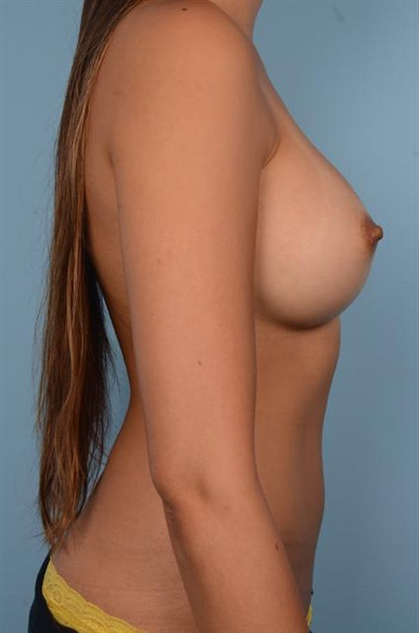 Breast Augmentation Gallery - Patient 1310696 - Image 2