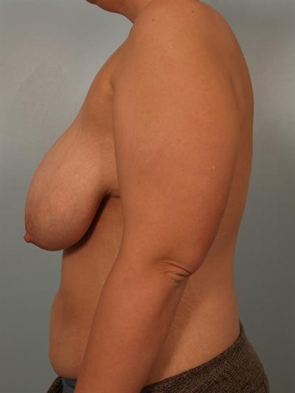 Breast Reduction Gallery - Patient 1310691 - Image 5