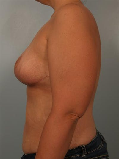 Breast Reduction Gallery - Patient 1310691 - Image 6