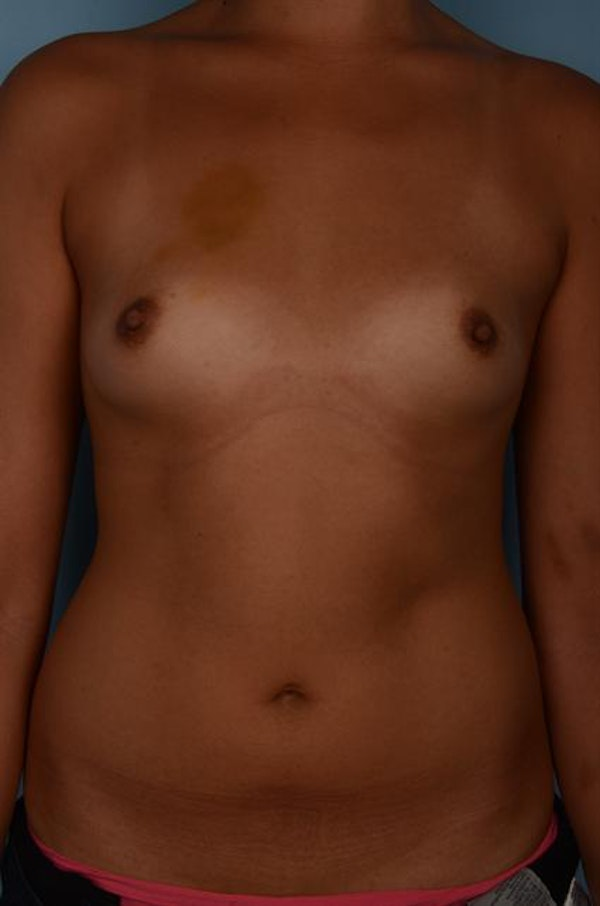 Breast Augmentation Gallery - Patient 1310696 - Image 3