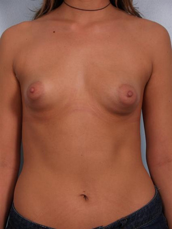 Breast Lift Gallery - Patient 1310694 - Image 1