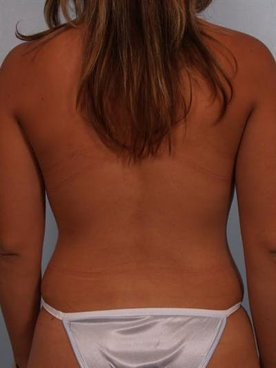 Mommy Makeover Gallery - Patient 1310693 - Image 8