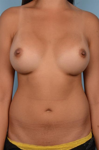 Breast Augmentation Gallery - Patient 1310696 - Image 4