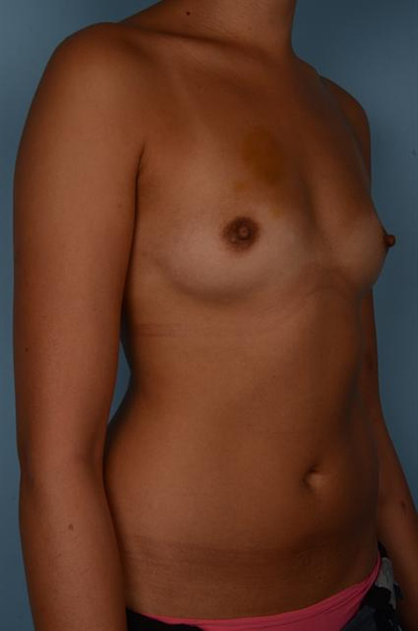Breast Augmentation Gallery - Patient 1310696 - Image 5