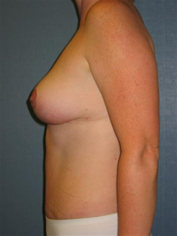 Breast Reduction Gallery - Patient 1310697 - Image 4