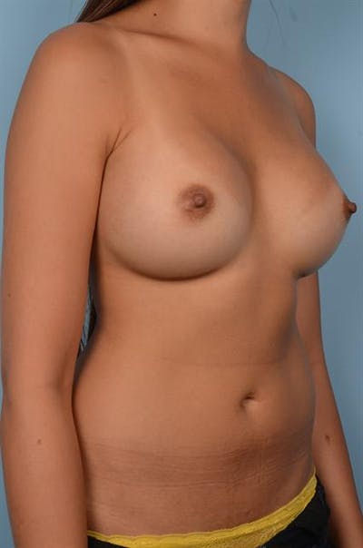 Breast Augmentation Gallery - Patient 1310696 - Image 6