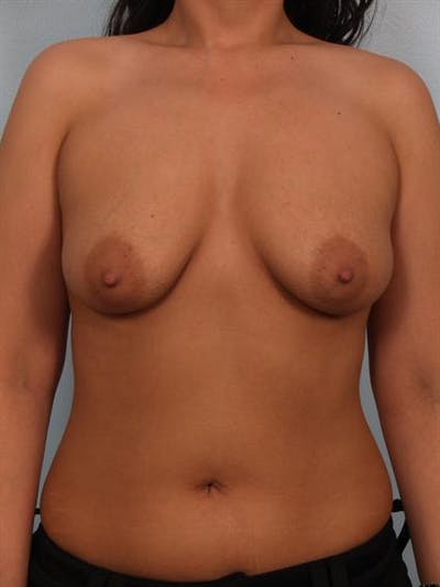 Breast Lift Gallery - Patient 1310700 - Image 1