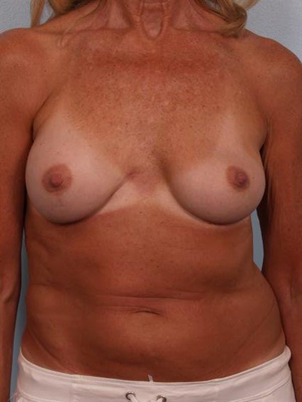 Complex Breast Revision Gallery - Patient 1310701 - Image 1