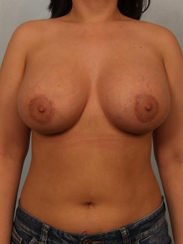 Breast Lift Gallery - Patient 1310700 - Image 2