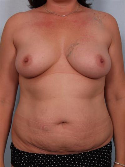 Mommy Makeover Gallery - Patient 1310699 - Image 1