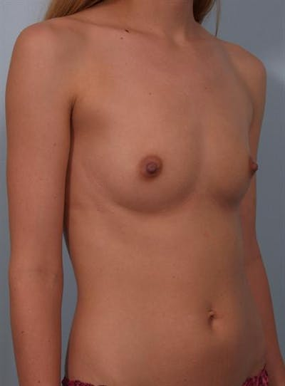 Breast Augmentation Gallery - Patient 1310702 - Image 1