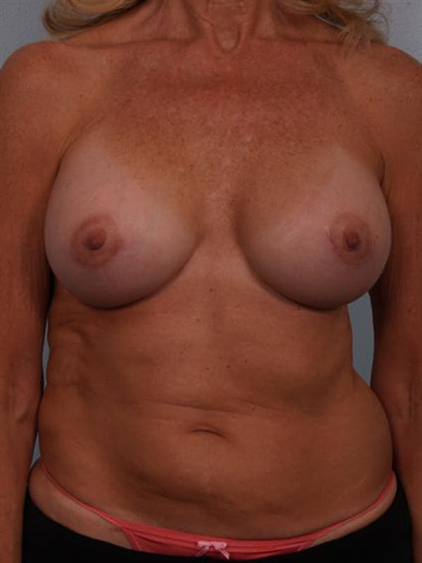 Complex Breast Revision Gallery - Patient 1310701 - Image 2