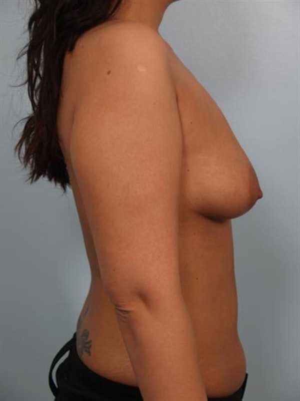Breast Lift Gallery - Patient 1310700 - Image 3