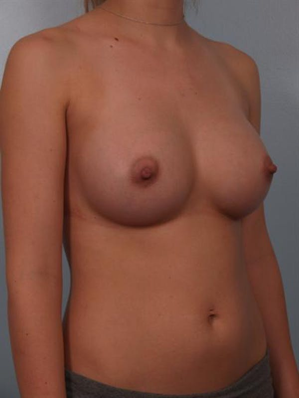 Breast Augmentation Gallery - Patient 1310702 - Image 2