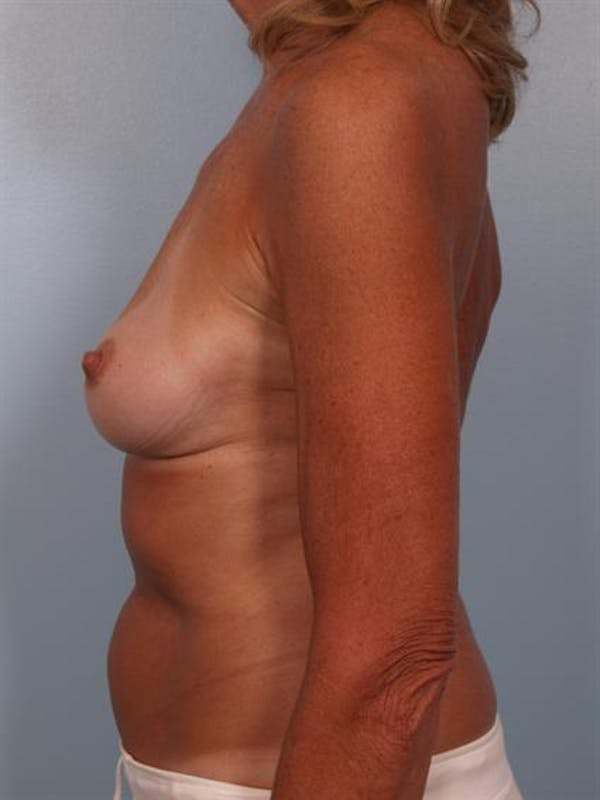 Complex Breast Revision Gallery - Patient 1310701 - Image 3