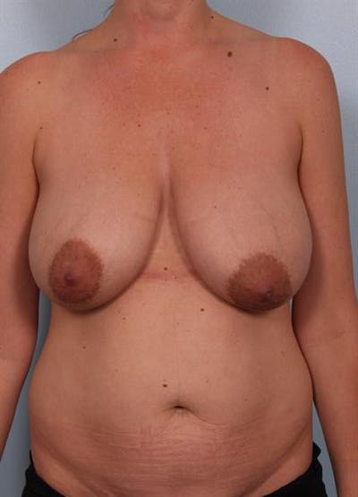 Breast Reduction Gallery - Patient 1310703 - Image 1