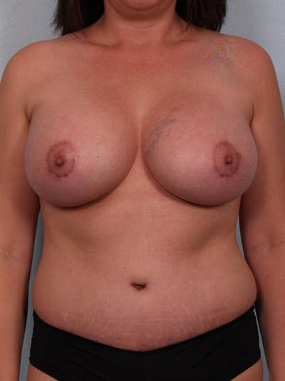 Mommy Makeover Gallery - Patient 1310699 - Image 2