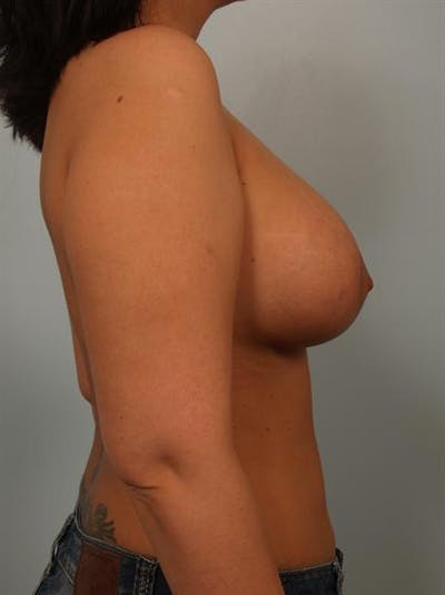 Breast Lift Gallery - Patient 1310700 - Image 4
