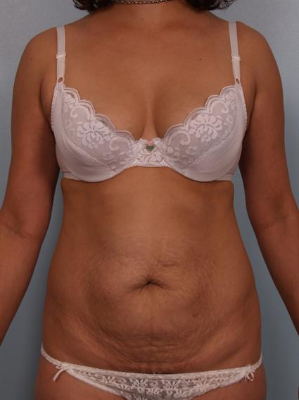 Image5 - Before and after image of Power Assisted Liposuction by Dr. Cohen.